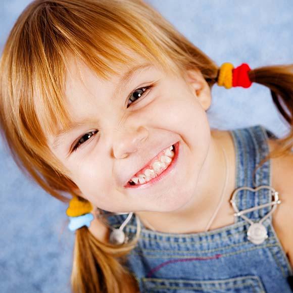 Selantes dentários para crianças