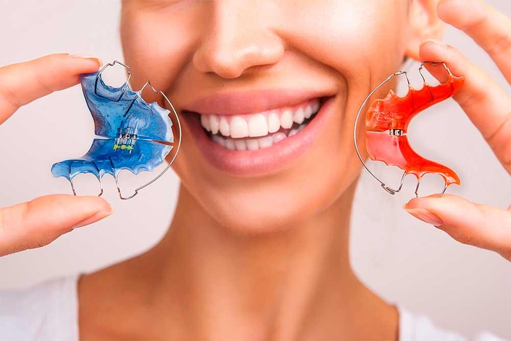 Ortodontia, tipos e cores de aparelhos ortodônticos