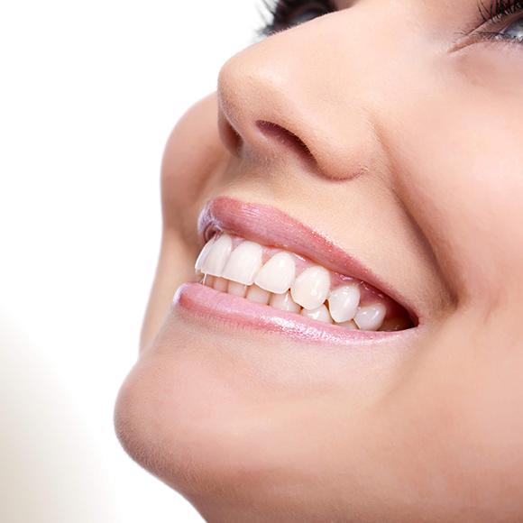 Estética do sorriso