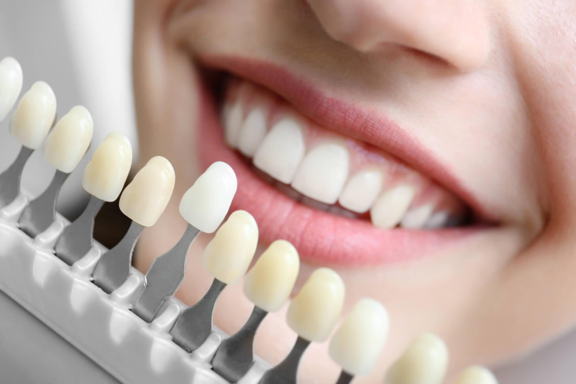 Faceta ou lente de contato dental