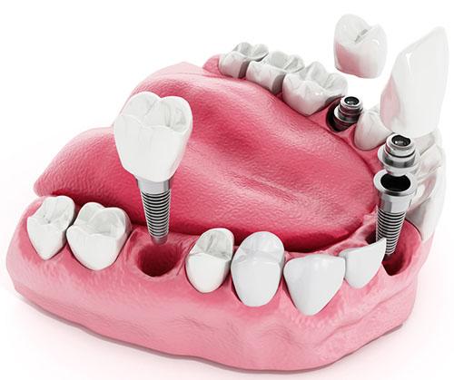Exemplo de uma prótese fixa (unitária) sobre o implante dentário