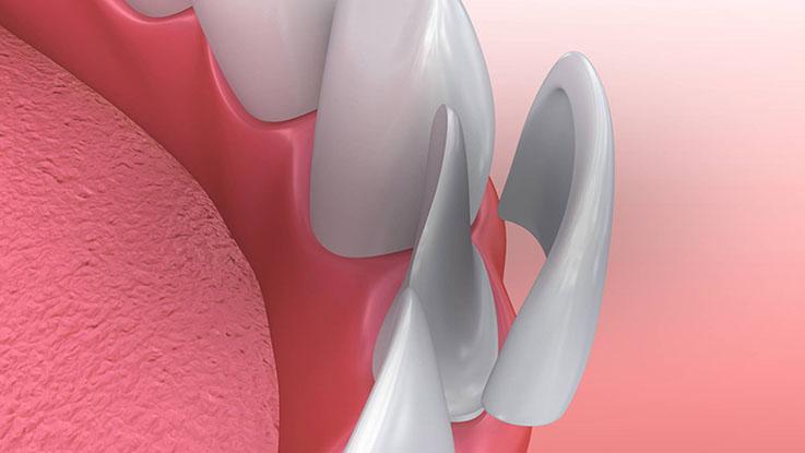 Demonstração da aplicação das lentes de contato dentais