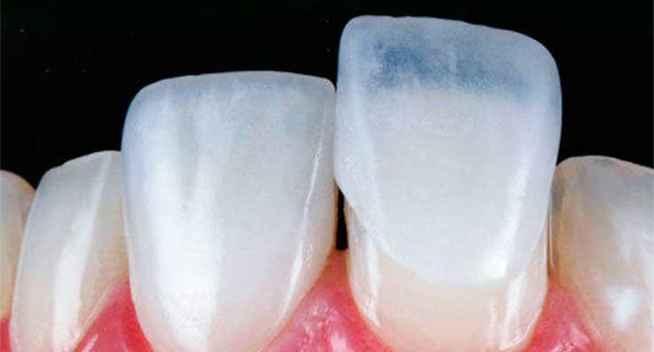 Aplicação das lentes de contato dentais