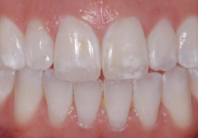 Manchas brancas nos dentes! Como tratar?