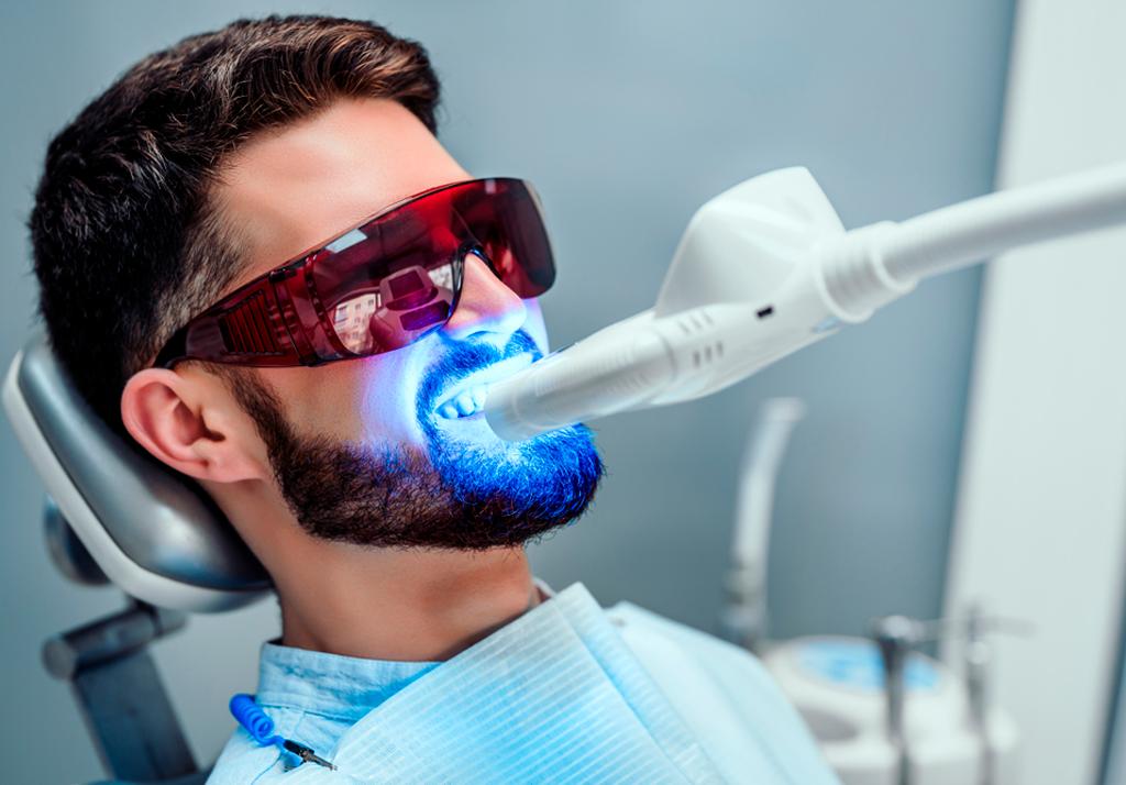 beneficios clareamento dental