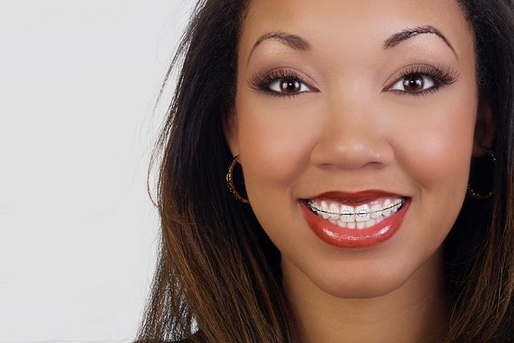 aparelho ortodontico dentcare center